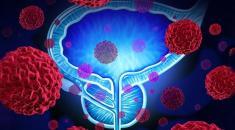 پروستات چیست؟ علائم و نشانه های بیماری پروستات