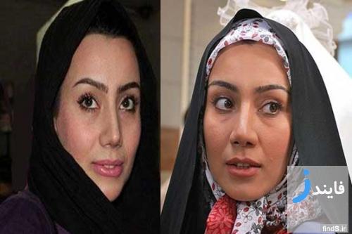 قبل و بعد از عمل جراحی بینی بازیگران زن سینمای ایران | فایندز