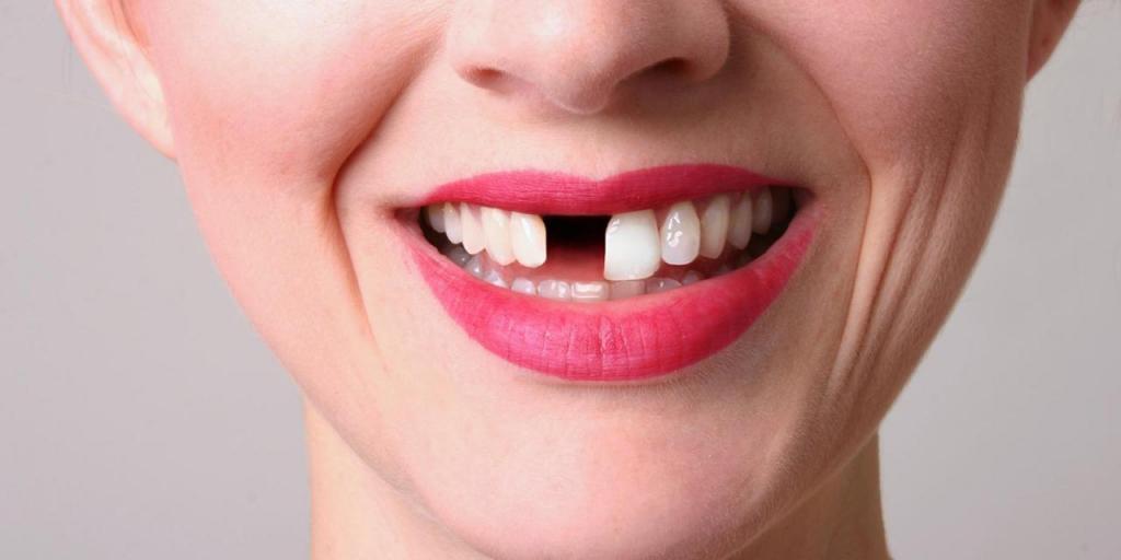عادتهایی که به دندانهایتان آسیب جدی وارد می کند