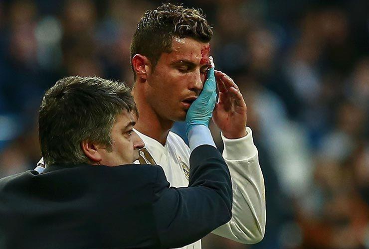 جراحت شدید ستاره فوتبال جهان، از ناحیه صورت!