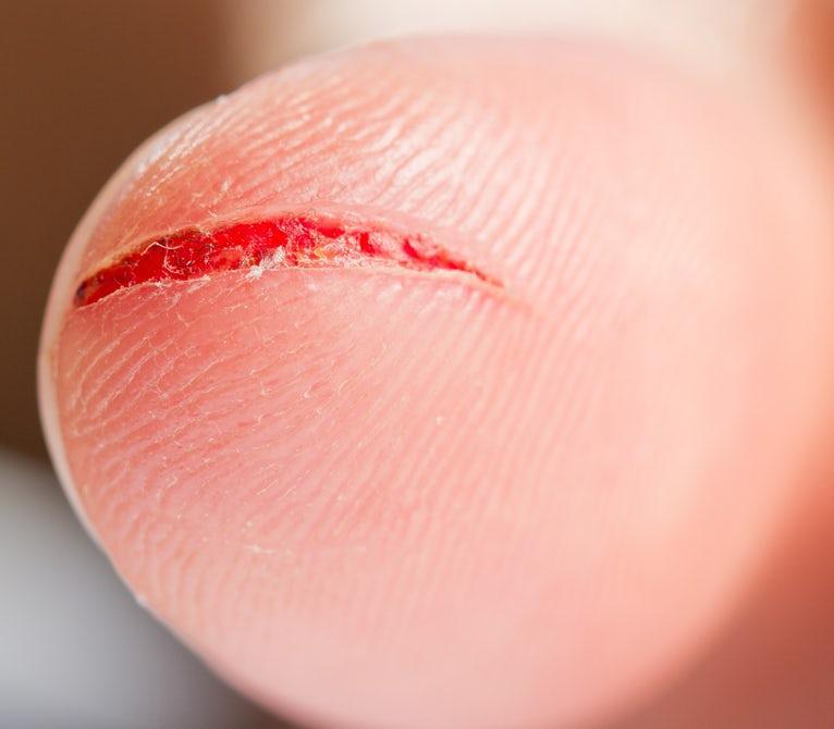 علائم و نشانههای افزایش قند خون بدن